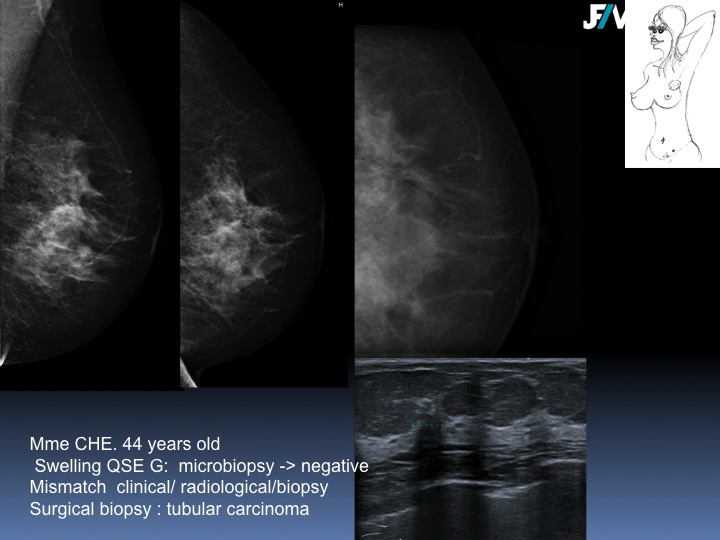 Breast Open Surgery without prior Biopsy : Still Available?