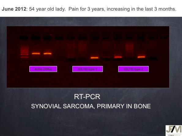 Mistakes in diagnosing of a Bone Tumor